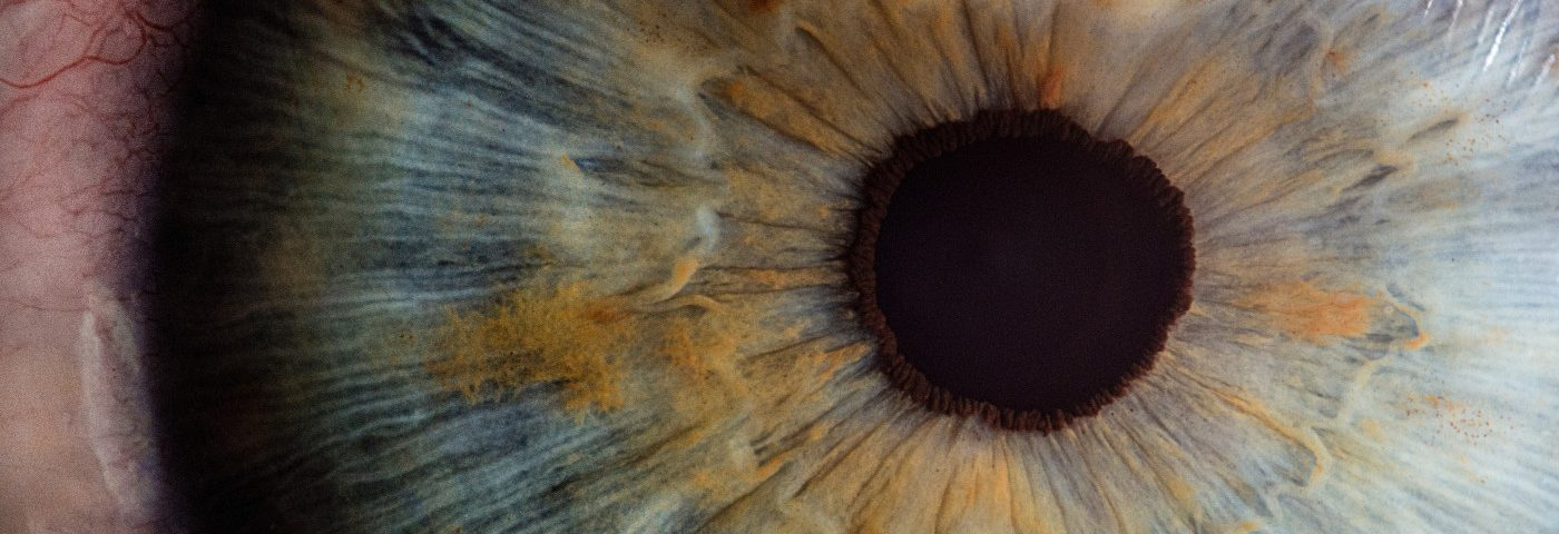 UW Scientist Awarded $17.2M Grant to Study Link Between Eye Health and Alzheimer's
