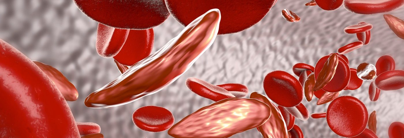 California Earmarks $15M for Expanding Care of Adult SCD Patients