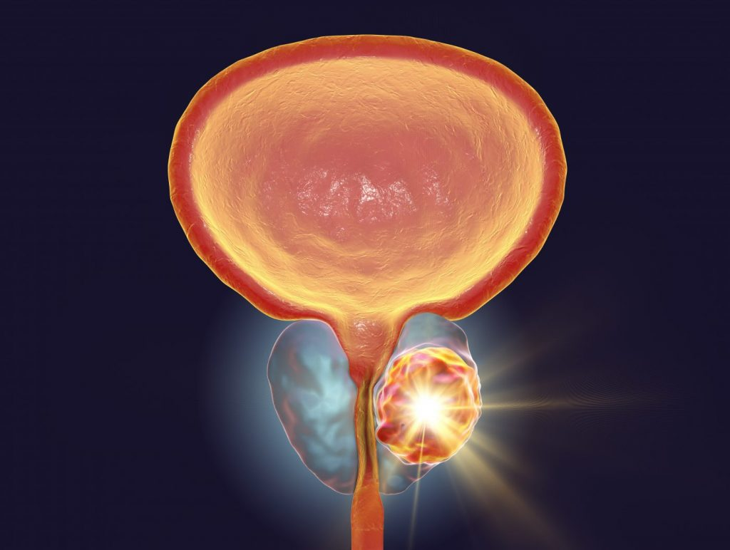 prostate cancer and diabetes