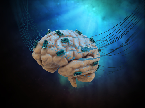 #AANAM – Deep Brain Stimulation Benefits Sustained for Years