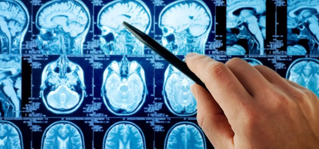 Gray Matter in Hippocampus Can Help Distinguish Between Two MS Types
