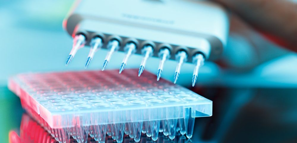 NfL Shows Potential as CMT Biomarker, But More Work Needed