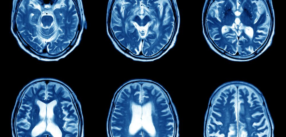 PPMS Patients 'Drove' Slowing in Brain Atrophy Seen With Ibudilast, Trial Analysis Finds