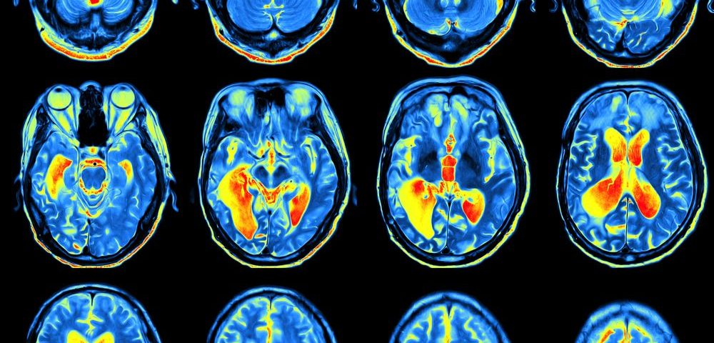 PET Scan Used to Distinguish Juvenile HD From Parkinson's in Case Study