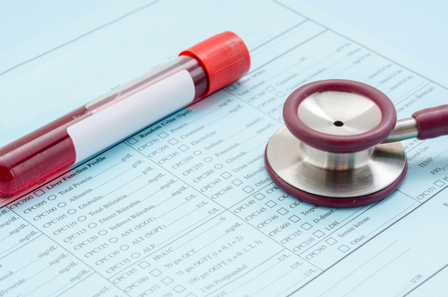Blood Type O Lowers Myeloma Risk, But Outcomes Typically Worse