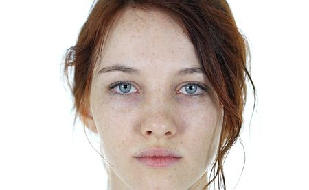 Stem Cells Can Augment Fat Grafts in Treating Facial Atrophy