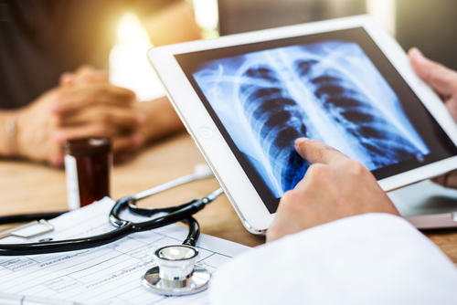 IPF Worsens Prognosis in Lung Cancer Patients