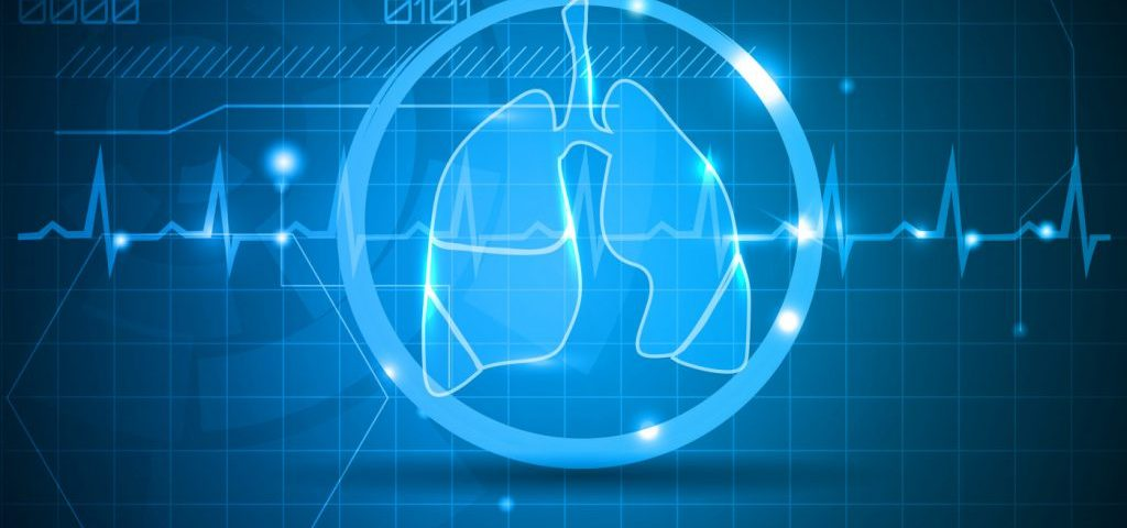 Race, Income Limit CF Lung Transplant Access in US More Than Canada
