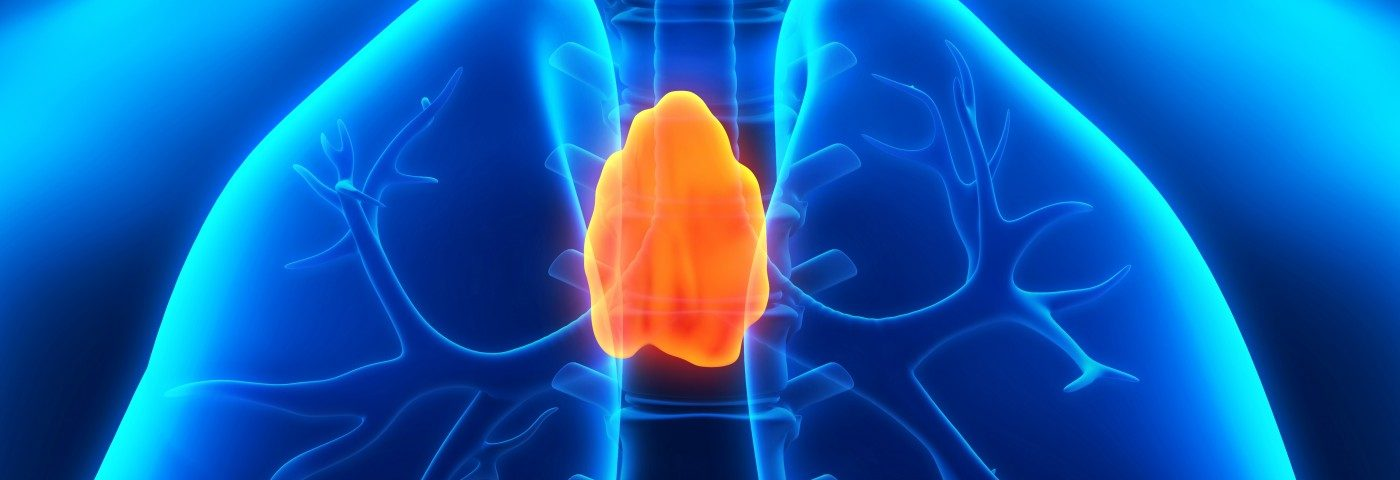 Thymectomy Found to Reduce Disease Severity in All MG Patients