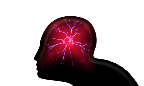 Model Using Brain Signals May Work as Early Warning System for Seizures