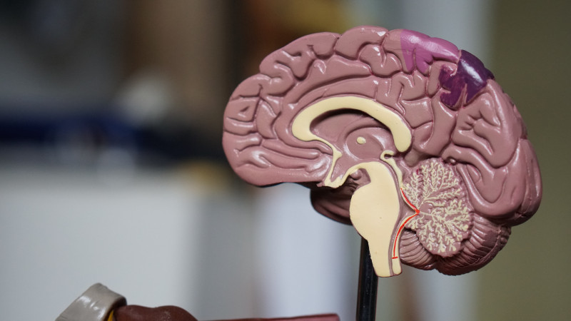 Brain Structures Tied to Worse Memory in Pediatric-onset MS
