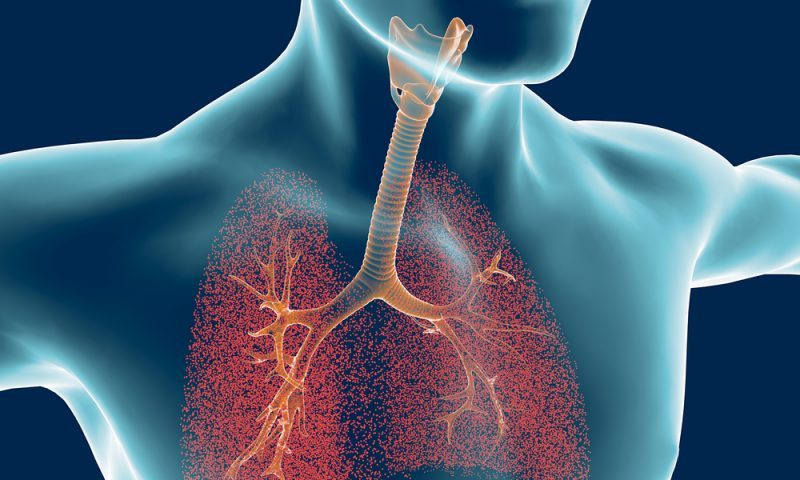 Daily Breathing Exercises Seen to Slow Progression in IPF Patients
